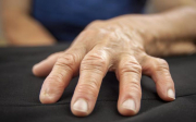Artróza prstů naruce